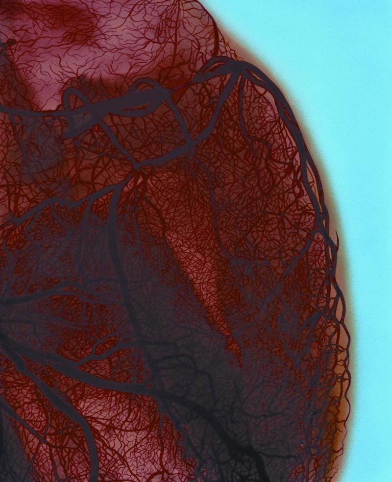 Conventional catheter angiogram using dye remains the gold standard for diagnosing coronary artery stenosis.