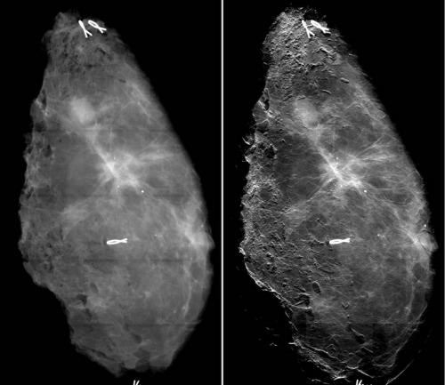 New Method for Diagnosing Breast Cancer