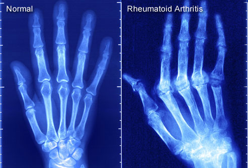 Ultrasound Helps Guide Arthritis Treatm