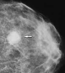 breast lesion