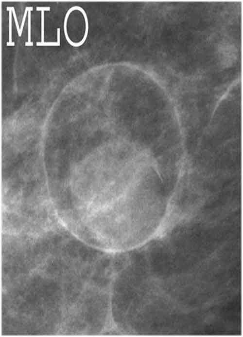 Free Mammography Teaching Files & Radiology Cases | Breast
